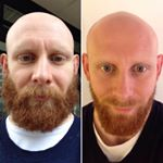Decembeard 2015 : A different sort of before & after... So the quest for a body weight of 100kg was finally reached and I was ready to shave for the first time in 3 months.  Sally told me I would scare the kids though as they wouldnt recognise me. So, instead of a clean shave, a compromise was reached. This involved my first visit to a barbers in about a decade.  #Decembeard is down but, not out while #Decembulk continues for a little longer.  #beforeandafter #transformationtuesday #beardlife #beardgainz #beardlosses #beardselfie #beardsandbarbells #wannabehipster #notahipster #musclegain #gainz #hypertrophy #strong #strength #getstrong #lightweightbaby #powerlifting #bodybuilding #crossfit #strongman by @flat_whites_free_weights